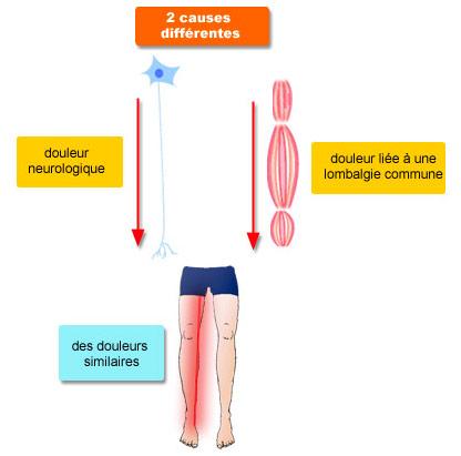 Diffusion douleur neurologique et douleur liée à une lombalgie commune