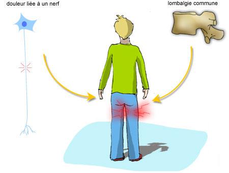 Douleur liée à un nerf