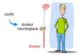 Mécanisme de la douleur neurologique