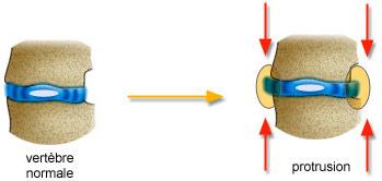 Mécanisme protusion discale