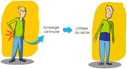 Orthèse du rachis