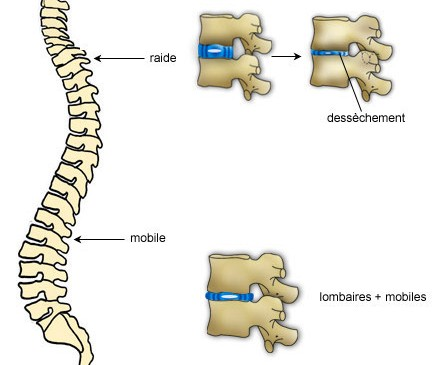 Vieillissement naturel des structures et lombalgie