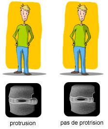 Qui est ateint par la protusion