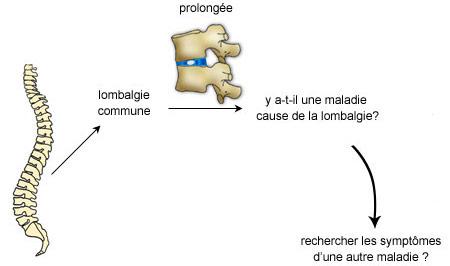 Recherche des symptomes de la lombalgie commune