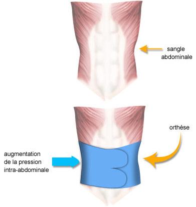 Augmentation de la pression intra-abdominale