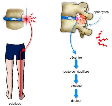 Le fenouil pour le traitement de lépine dorsale