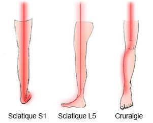 douleur pied et jambe